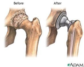 intervento_protesi_anca